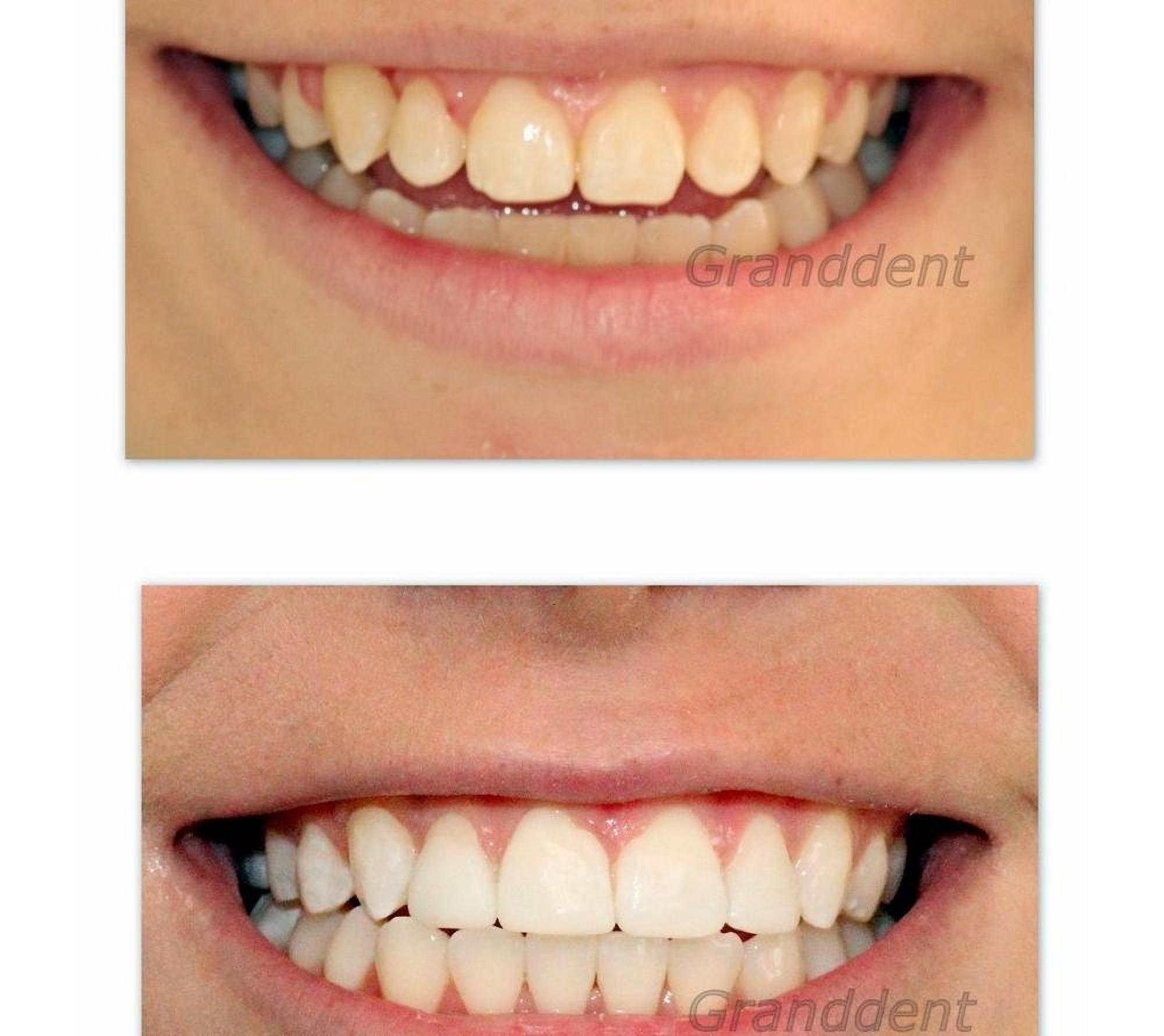 Dental treatment in the dental clinic Granddent in Odessa Ukraine