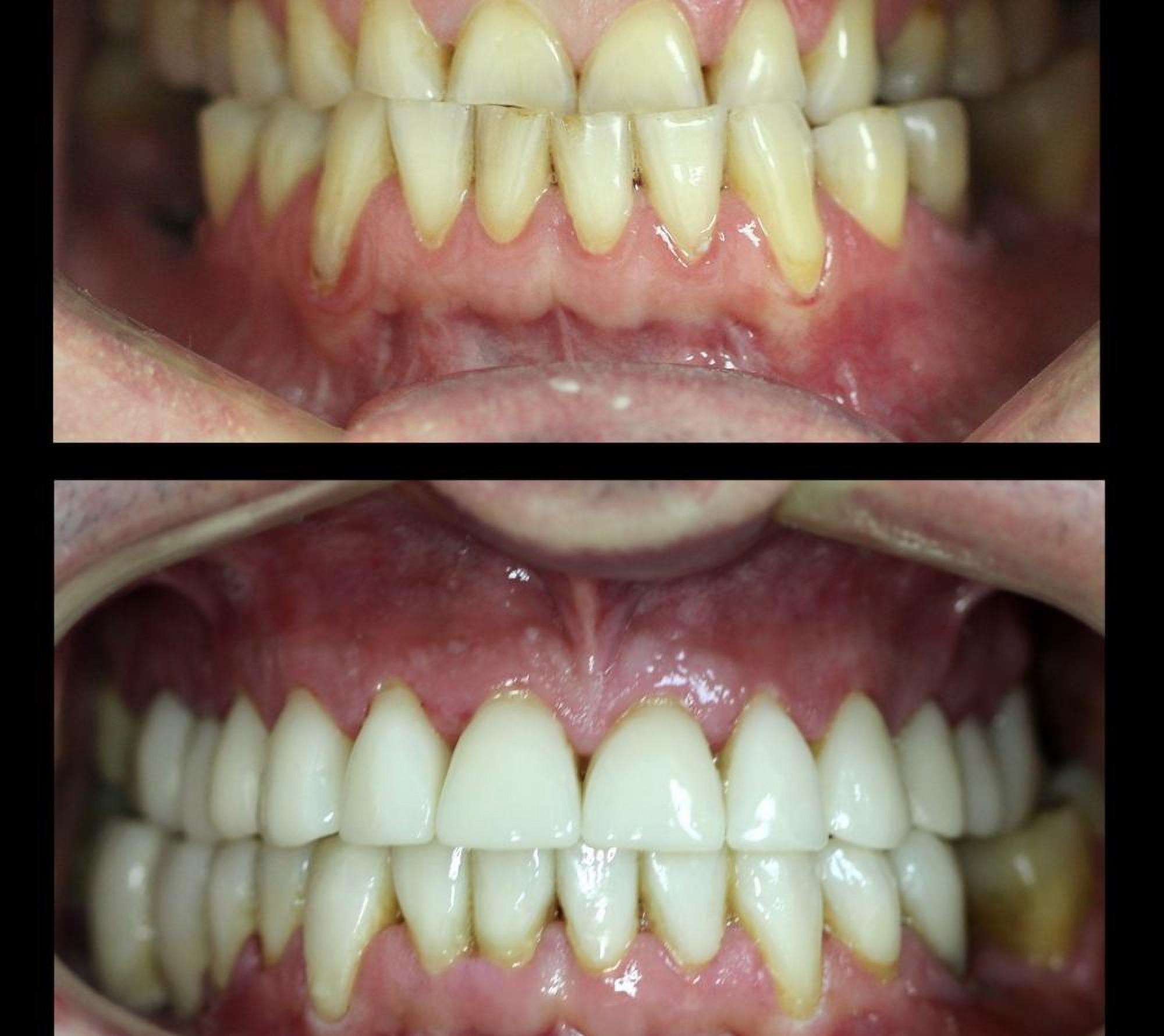 Correction of bite in the dental clinic Granddent in Odessa Ukraine