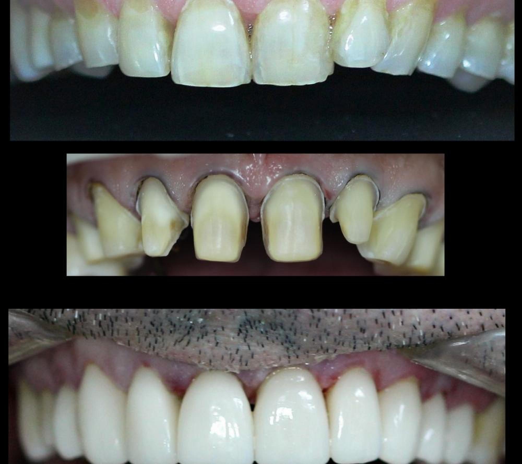 Comprehensive dental treatment in the dental clinic Granddent in Odessa Ukraine