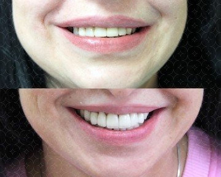 Aesthetic dentistry in the clinic Your Dentist in Odessa Ukraine