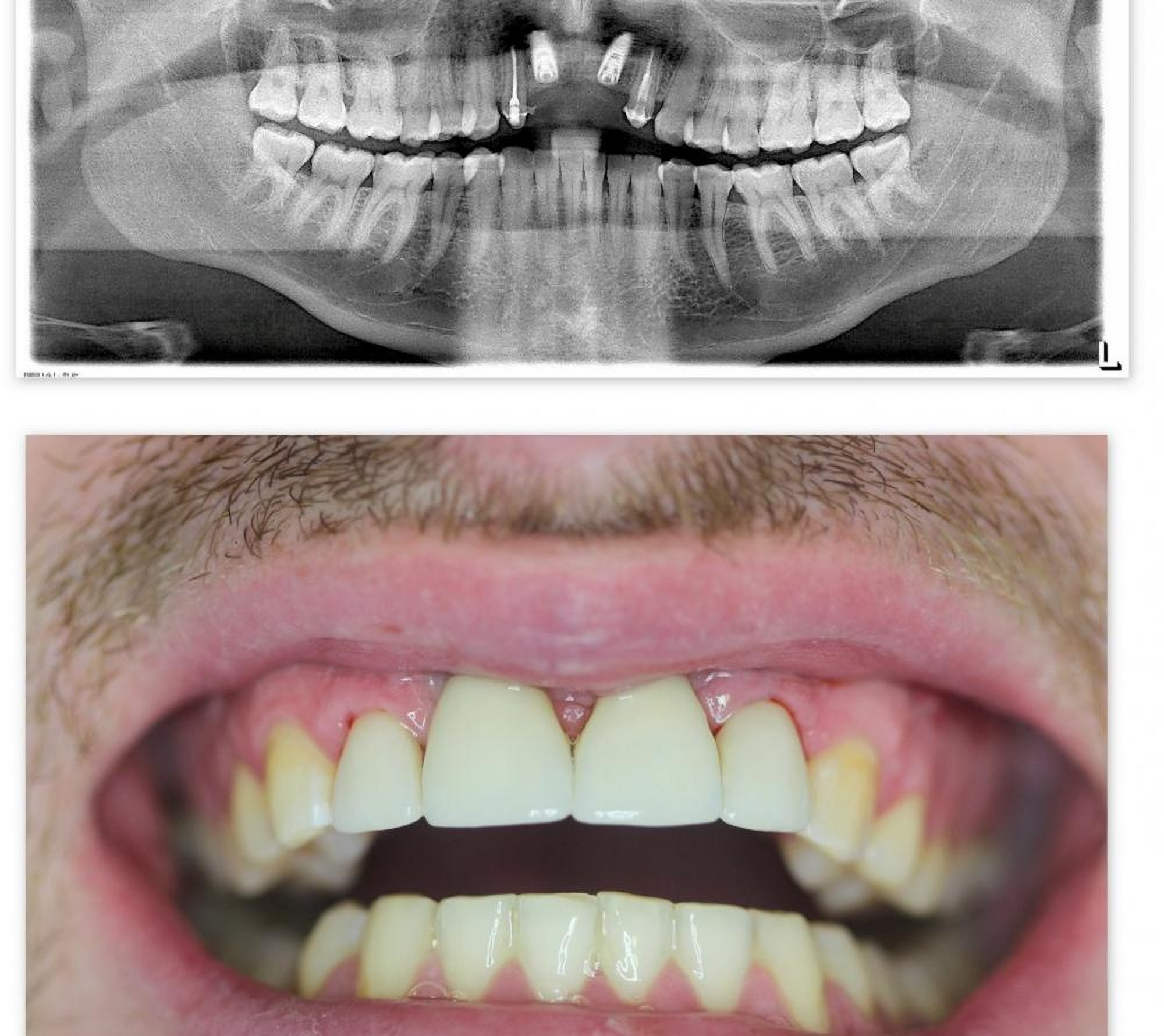 Surgery at Granddent Dental Clinic in Odessa Ukraine